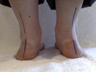 Pronation of the foot leads to injury in runners