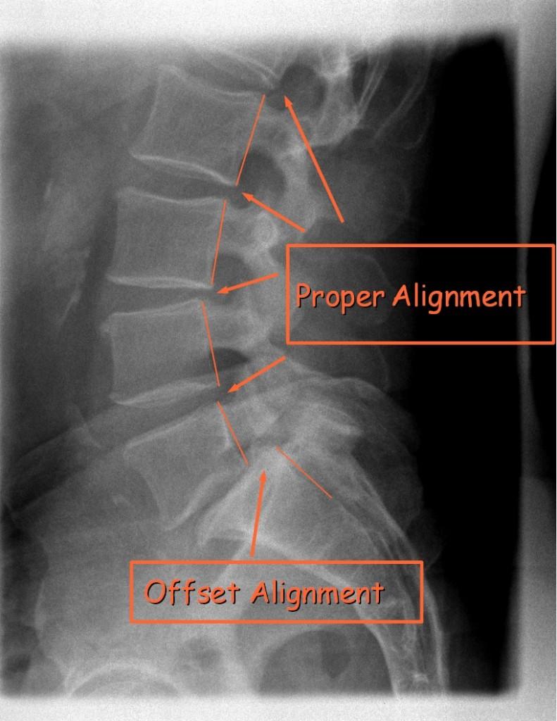 Spondylolisthesis x-ray St George Chiropractor