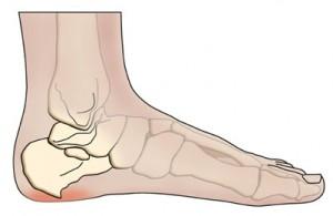 Heel spur pain Chiropractor St George UT