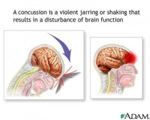 Concussion Injury to Brain