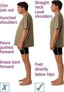 chiropractic posture examples
