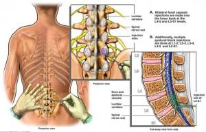 Epidural injections