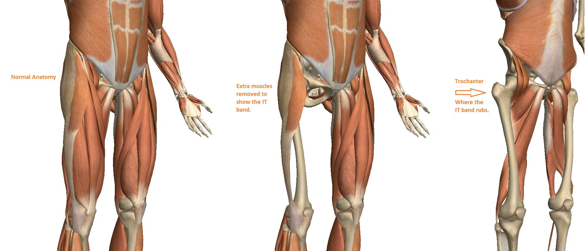 Cialis And Hip Pain