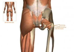 The bursa provides a cushion between the trochanter of the femur and the TFL muscle.