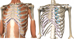 Costochondritis occurs right at the bone and cartilage junction