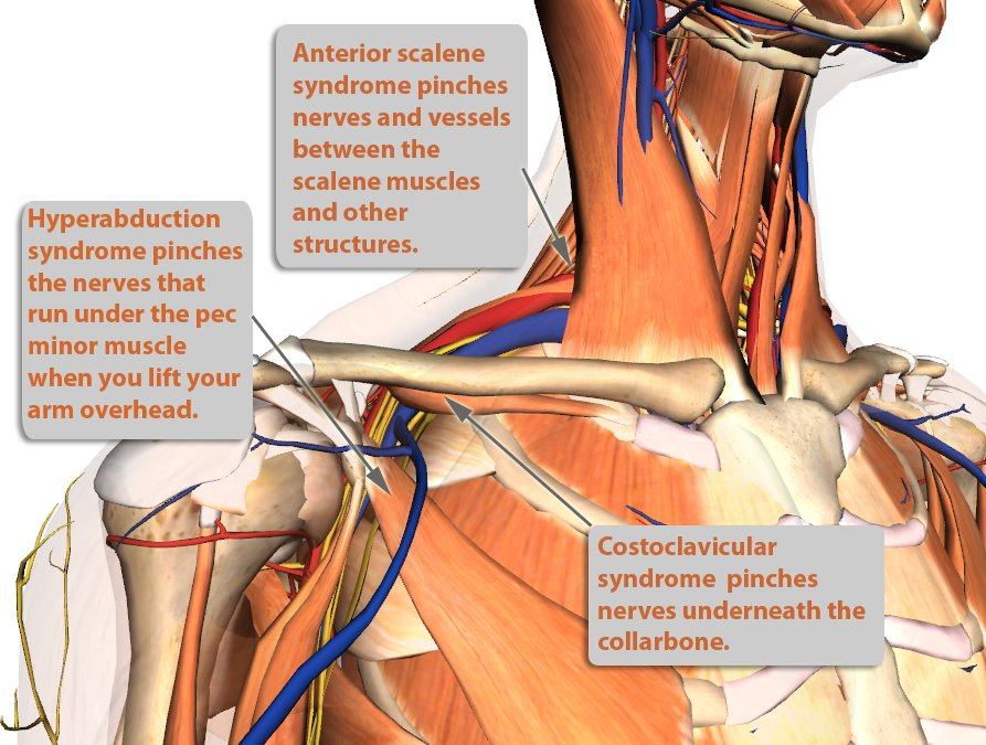 Thoracic Outlet Syndrome Treatment -Innova Pain Clinic