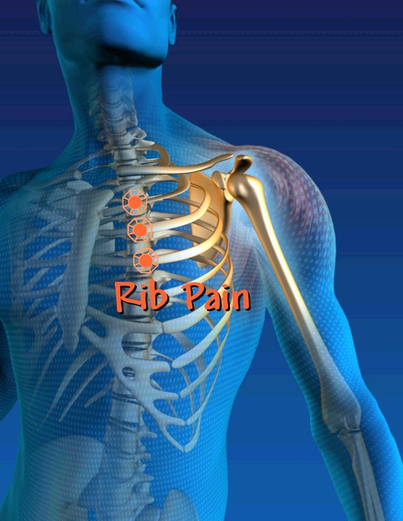 Rib Pain Treatments - Costochondritis -Innova Pain Clinic