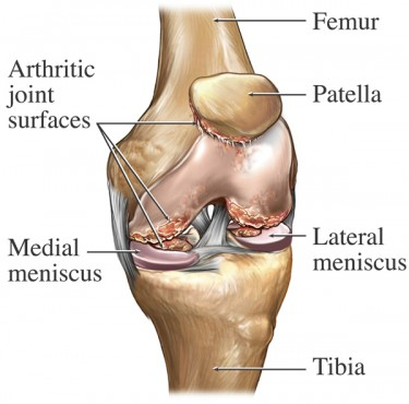 Manual medicine as effective as surgery for meniscal tear innova chiropractic can help knee pain ccuart Images
