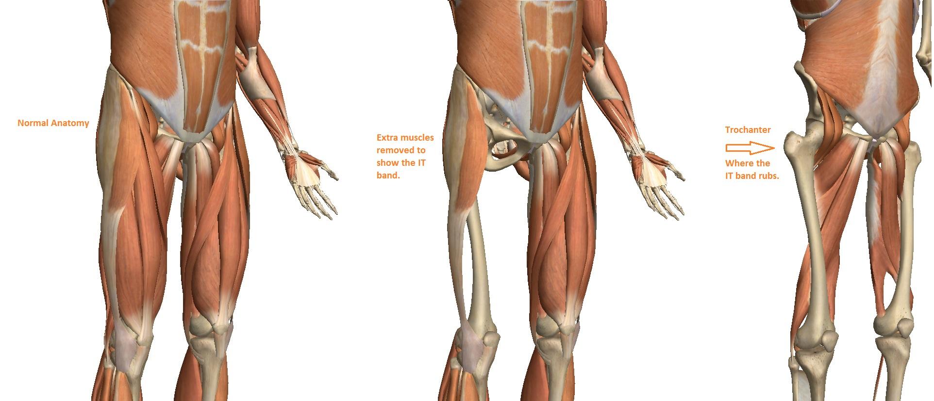 Trochanteric Bursitis and Hip Pain - Innova Pain ClinicInnova Pain ...